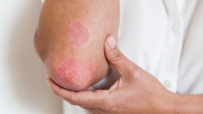Illustration of The Cause Of A Rash On The Elbow That Never Goes Away?