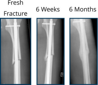 Illustration of Bone Growth Is Slow After Fracture?