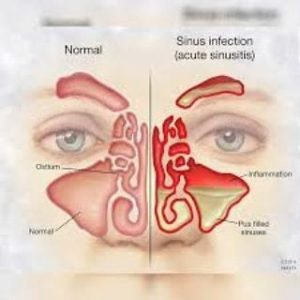 Illustration of Gurah Therapy To Treat Sinusitis And Nasal Polyps?