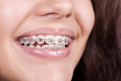 Illustration of The Use Of Braces On Teeth That Are Neat?