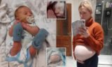 Why Is Spina Bifida More Vulnerable To Baby Girls?