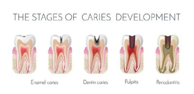 Illustration of How To Deal With Cavities Due To Tooth Extraction?