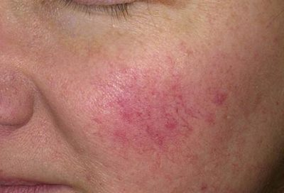 Illustration of Why Rosy Cheeks And Little Pimples, Is This Rosacea Or Redness Usual?