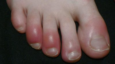 Illustration of How Come It's Been 1 Week The Toes That Were Crushed By The Chair Haven't Healed?