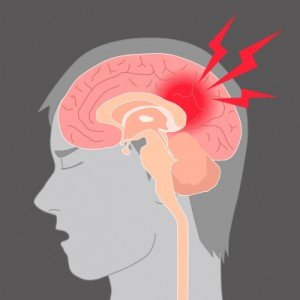 Illustration of The Head Feels Spinning Accompanied By A Limp Body After Recovering From The Flu?