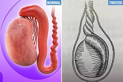 Illustration of The Cause Of The Left Testicle Is Greater Than The Right?