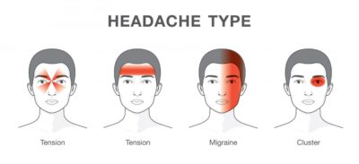 Illustration of The Cause Of Frequent Headaches That Move?