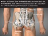 Chronic And Frequent Recurrence Of Back Pain?
