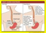 What Is The Difference Between Heartburn And GERD?