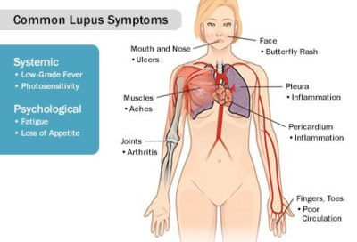 Illustration of Abdominal Pain, Headache, Fatigue And Body Aches?