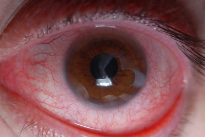 Illustration of The Eye Is Exposed To Chemicals For Cars?