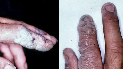 Illustration of Hands Have Not Healed After Being Exposed To Chemical Fluids?