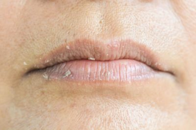 Illustration of Treat Black Bumps On The Lips That Have Been Chronic?