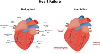 Illustration of Weakness, Tightness And Coughing, Weight Loss In Patients With Heart Swelling And Pleural Effusion?