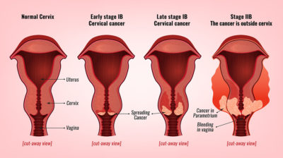 Illustration of How To Cure Cervical Cancer Stage 4 That Can Not Be Operated On?