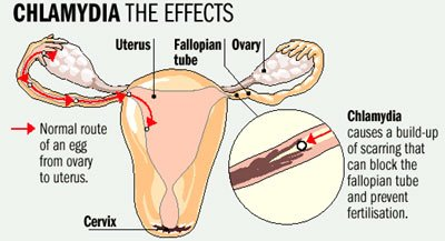 Illustration of Does Consuming Eggs Cause Gonorrhea To Recur?