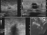 The Results Of An Ultrasound Lump In The Left Breast?