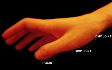 Illustration of Dislocated Thumb?