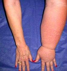 Illustration of Lymphedema Due To Cancer?