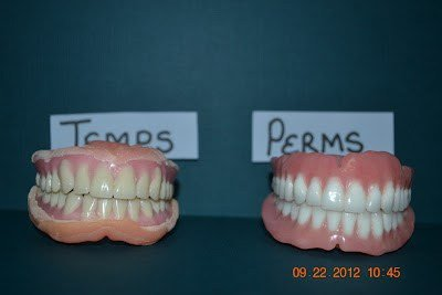 Illustration of Can I Use Temporary Dentures Before Using Permanent Dentures?