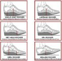 Are There Side Effects From The Use Of Orthopedic Shoes In Children Aged 1 Year 5 Months?