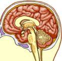 Can The Impact Of Severe Brain Hemorrhage After An Accident 7 Months Ago Reduce Intelligence?