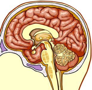 Illustration of Can The Impact Of Severe Brain Hemorrhage After An Accident 7 Months Ago Reduce Intelligence?