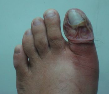 Illustration of Swelling In The Big Toe Accompanied By Discharge Of Pus?