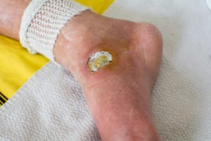 Illustration of Treatment For Wounds In Diabetics That Never Heal?