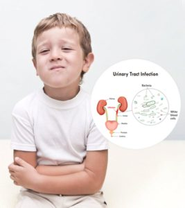Illustration of Causes Of Urinary Tract Infections In Children?