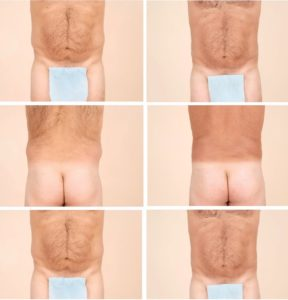 Illustration of How To Treat Surgery Scars Above The Hollow Buttocks Fold Rather Deep?