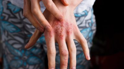 Illustration of How To Deal With Atopic Dermatitis Due To Cold Temperatures And Dusty Rooms That Recur?