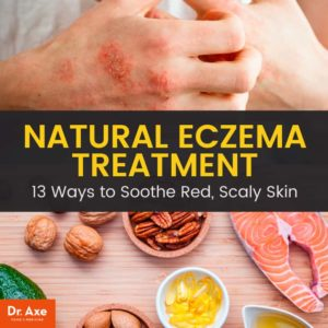 Illustration of Treatment For Eczema On The Skin?
