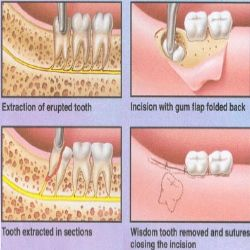 Illustration of Side Effects Of Tooth Extraction On The Back?