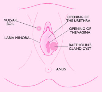 Illustration of Pink Bump On The Lips Of The Vagina?