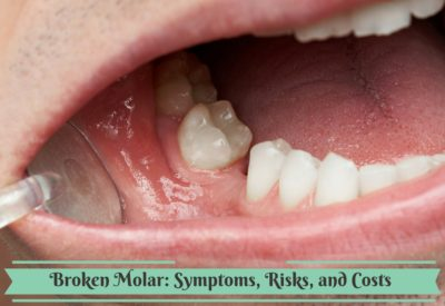 Illustration of Is It Dangerous If The Front Molars Are Damaged When Asking For Pain?