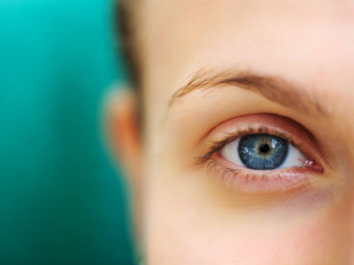 Illustration of The Cause Of The Left And Right Eyelid Folds Is Not Symmetrical?