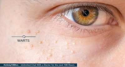 Illustration of How To Get Rid Of Warts On The Face And What Is The Cause Because Of Using Cosmetic Products?