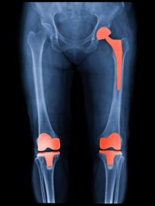 Illustration of Will The Uneven Joints Due To Alternative Medicine Be Strong And How Is The Medical Treatment?