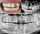 At The Age Of 20, Teeth Are Piled Up. Can You Still Use Stirrup?