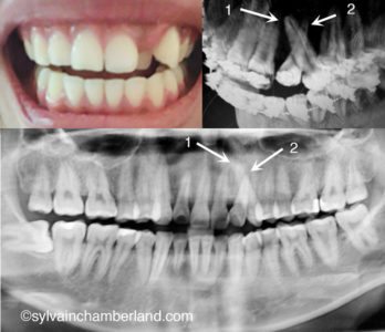 Illustration of At The Age Of 20, Teeth Are Piled Up. Can You Still Use Stirrup?