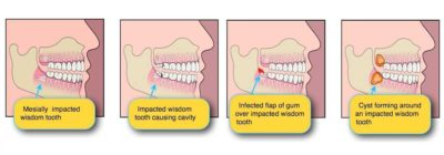Illustration of Does My Wisdom Tooth Hurt When I Get On An Airplane?