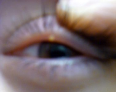 Illustration of White Spots On The Inside Of The Eyelid?