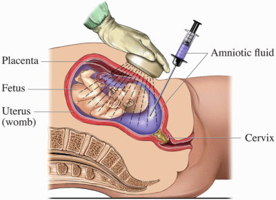 Illustration of Possibility Of Getting Pregnant After The Treatment Of Turner Syndrome?