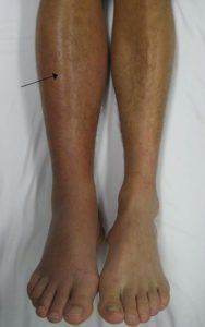 Illustration of The Cause Of Swelling In The Front Calf But Does Not Feel Pain?
