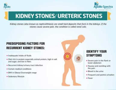 Illustration of Symptoms And Causes Of Kidney Stone Disease?