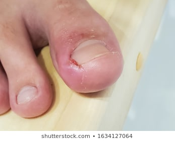 Illustration of Pus In The Big Toe?