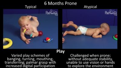 Illustration of 6-month-old Babies Move Too Actively?