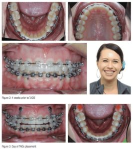 Illustration of Braces Installation On Someone Who Has A Gummy Smile?