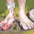 Itching On The Toes Until It Fester And Bleeds?